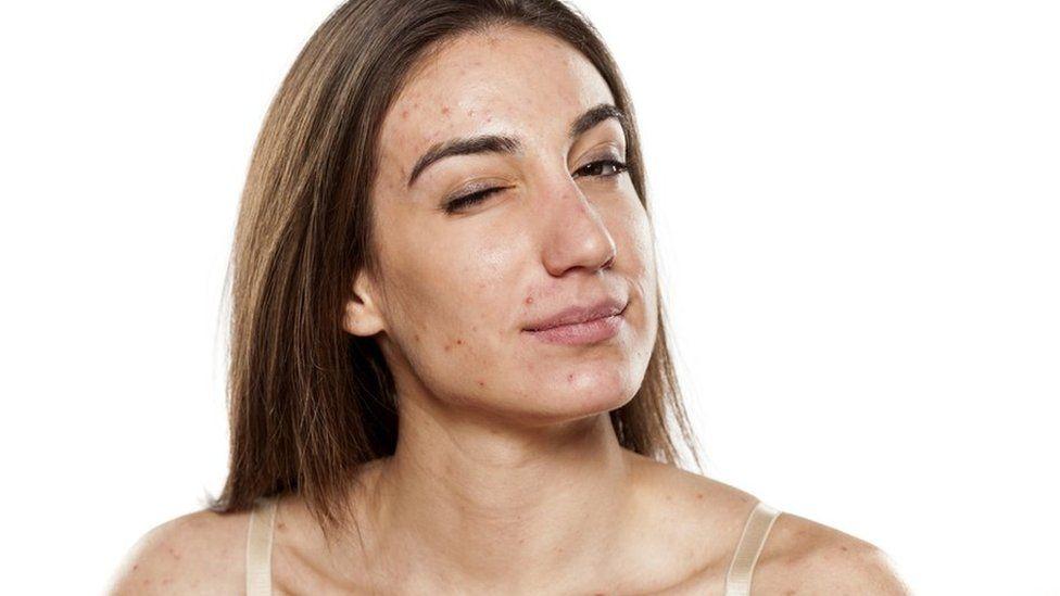 Três passos para lidar com o efeito da acne na sua autoestima